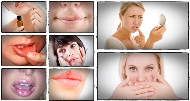 Click Here to Download Ultimate Herpes Protocol PDF Download