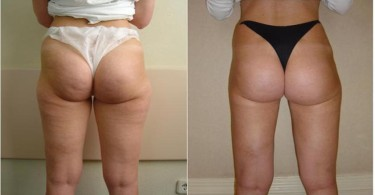 8 Week Cellulite Blaster by Sarah Jayne is the fast natural method to get rid of your cellulite and your fat, 8 Week Cellulite Blaster highly effective and